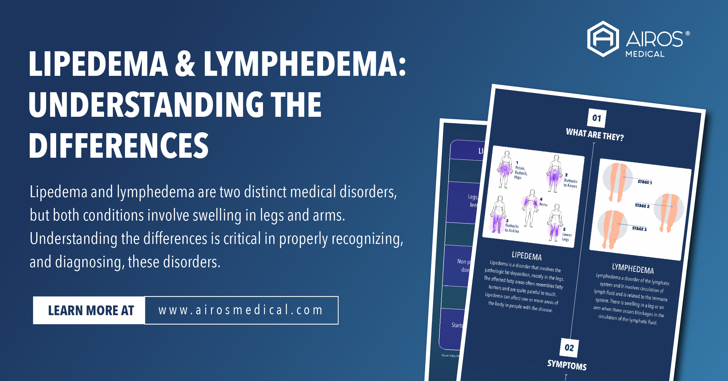 Lipedema & Lymphedema: Understanding The Differences
